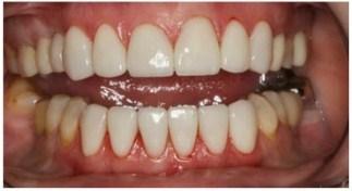 Виниры на зубы: фото